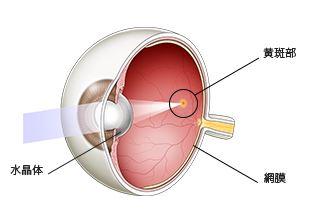 iPS細胞で加齢黄斑変性の臨床試験